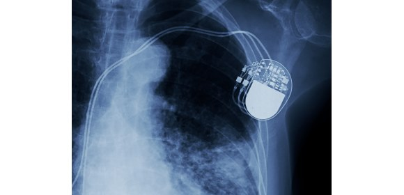 Medical device electronics, such as this pacemaker, must function reliably & without fault