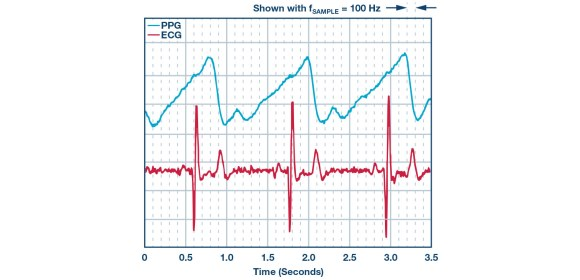 Figure 3. ECG measurement combined with PPG