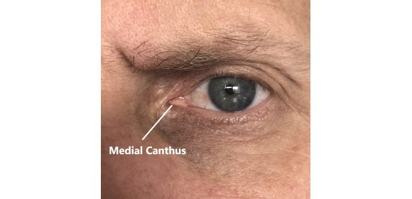 The medial canthus (tear duct) provides the strongest correlation between outside skin temperature & core body temperature and is measured more precisely from a close distance